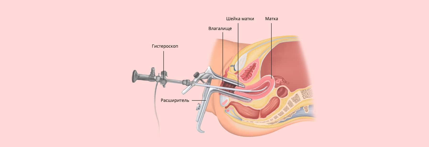схема гистероскопии матки